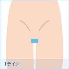 Iライン毛
